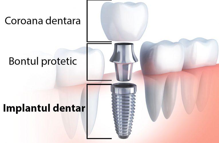 Costul lucrărilor dentare la clinica dentară DentoCare